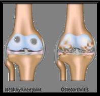 arthritic_knee_01