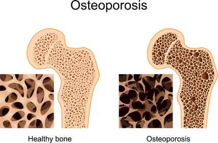 osteoporosis_fracture